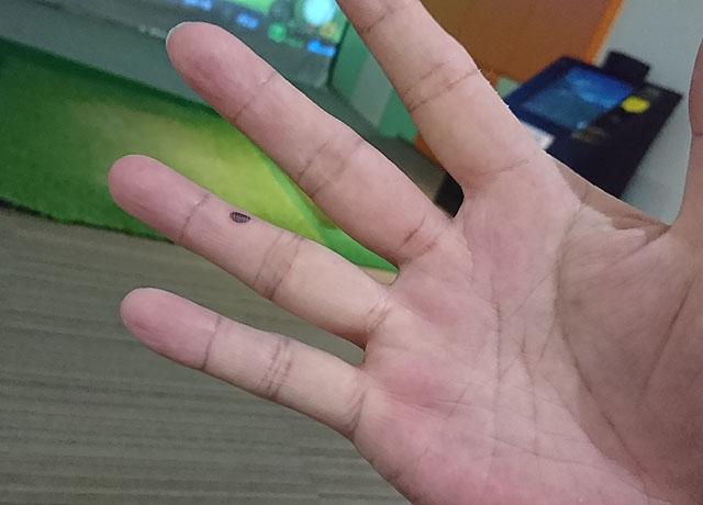 ゴルフ練習で指に血豆