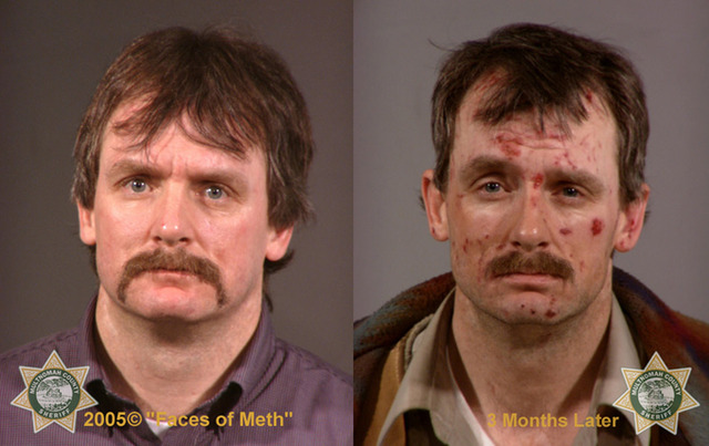 facesofmeth