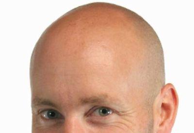 ハゲの男性は、毛がある男性より精子の数が「60%も少ない」と判明