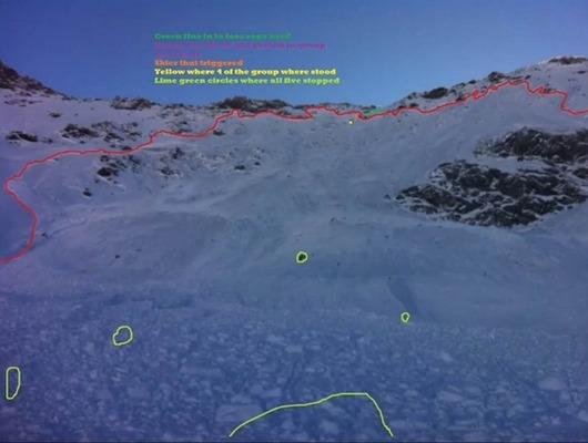 雪崩による埋め込まれたスキーヤーの位置