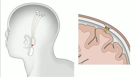 脳の電極で、ゲームのキャラクターを操作する実証実験 -Final Fantasy XIV Played with Brain Implants-
