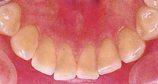 綺麗な歯の裏