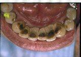 ヤニなどで真っ黒な歯の裏!