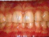 綺麗な歯茎