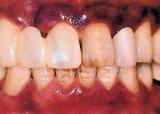 歯槽膿漏で黒く変色した歯茎