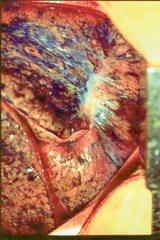 肺癌になった肺