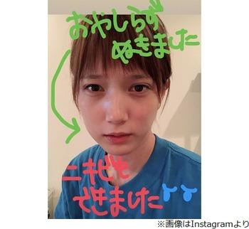 【本田翼】親知らず抜き顔腫れる