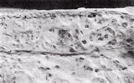 芽殖孤虫とかいう謎の寄生虫、成虫も最終宿主も不明の模様