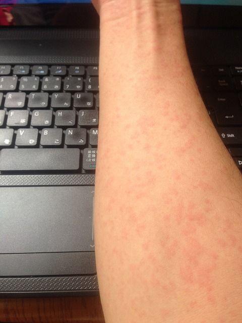 麻疹 画像 コリン 性 蕁
