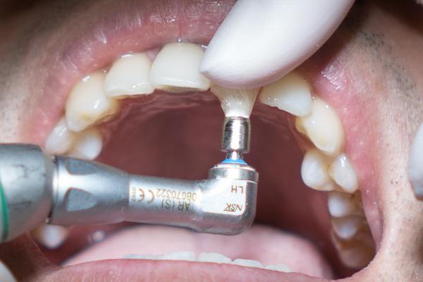 きれいな歯クリニックさくら 歯石除去-27