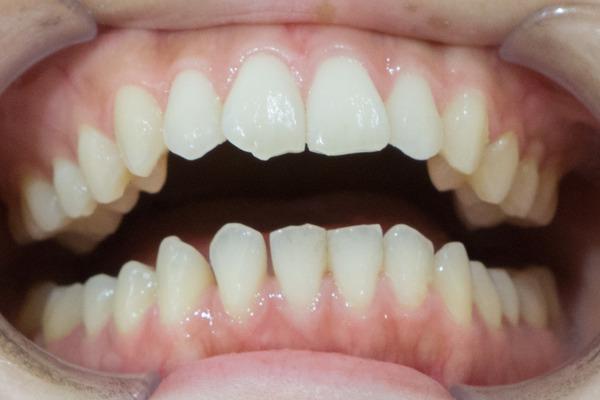 きれいな歯クリニックさくら ホワイトニング 1-8