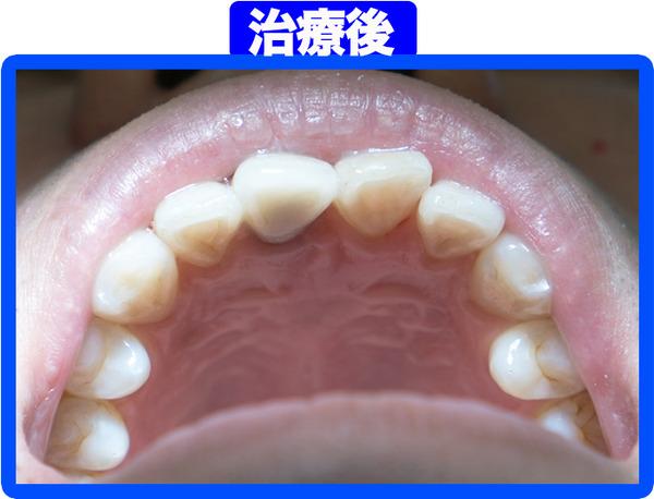 きれいな歯クリニックさくら-治療後-2