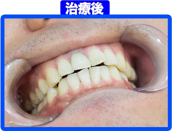 きれいな歯クリニックさくら-治療後-1