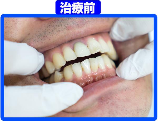 きれいな歯クリニックさくら-治療前-1