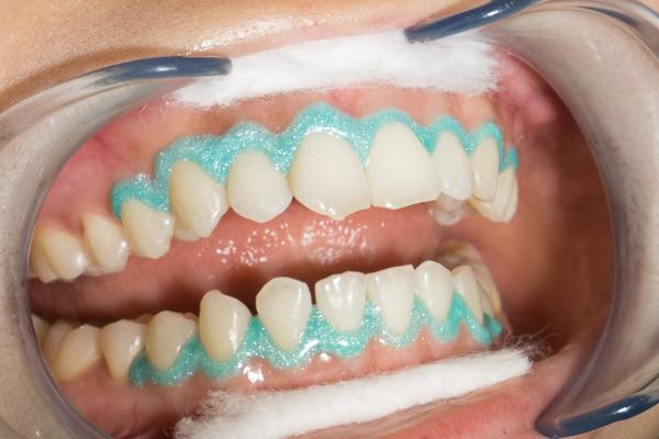 きれいな歯クリニックさくら ホワイトニング 1-23