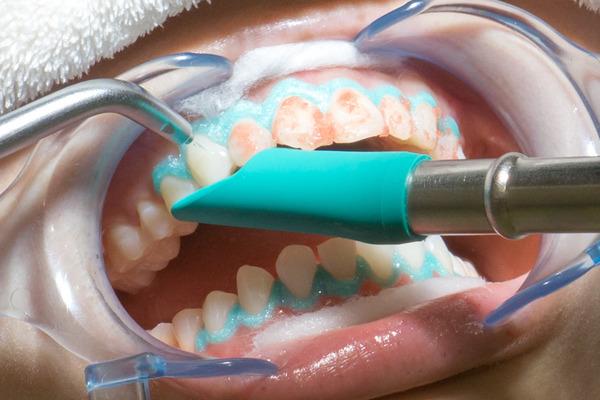 きれいな歯クリニックさくら ホワイトニング 1-34