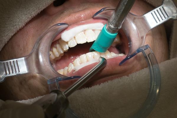 きれいな歯さくら カジュアルホワイトニング-11