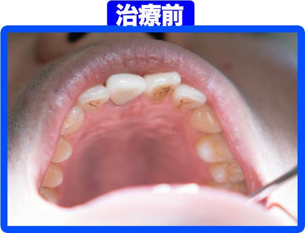 きれいな歯クリニックさくら-治療前-2