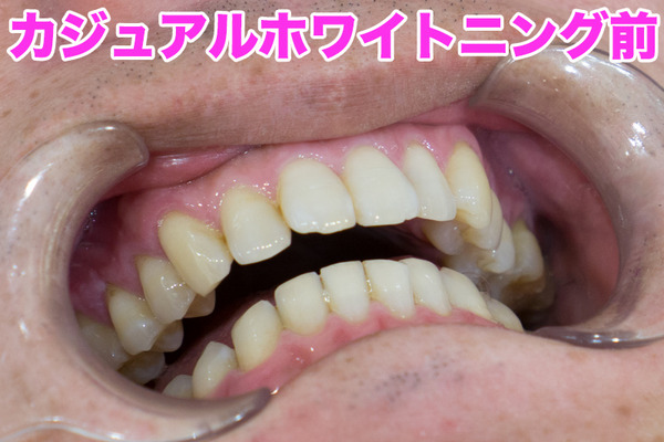 きれいな歯さくら-カジュアルホワイトニングbefore