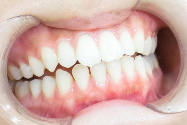 きれいな歯さくら ホワイトニング 3-4