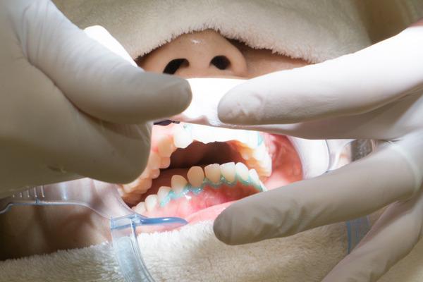 きれいな歯さくら ホワイトニング 4-3