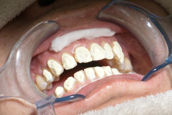 きれいな歯さくら カジュアルホワイトニング-8