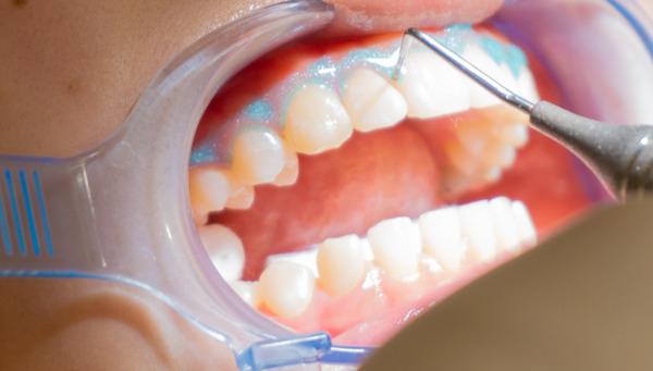 きれいな歯さくら_小-260