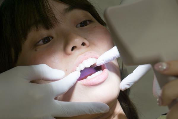 きれいな歯さくら ホワイトニング 2-7