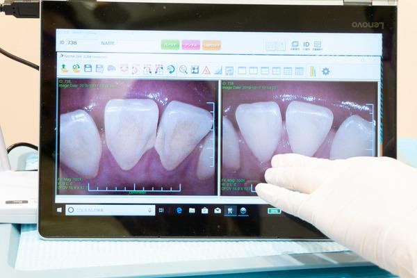 きれいな歯さくら_小-232