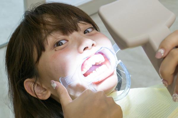 きれいな歯さくら ホワイトニング 4-8