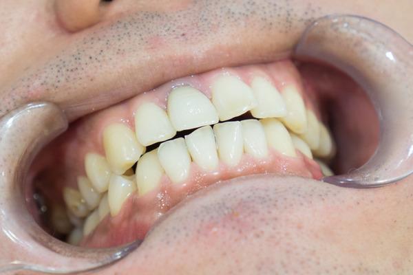 きれいな歯クリニックさくら 歯石除去-30