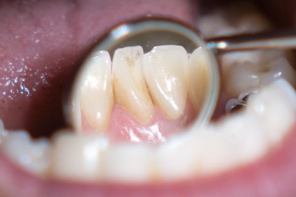 きれいな歯クリニックさくら 歯石除去-11