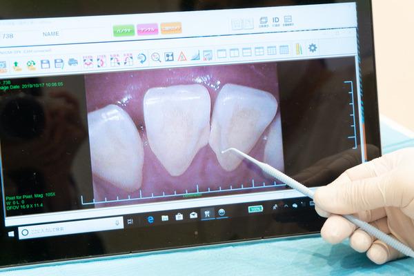 きれいな歯さくら_小-142