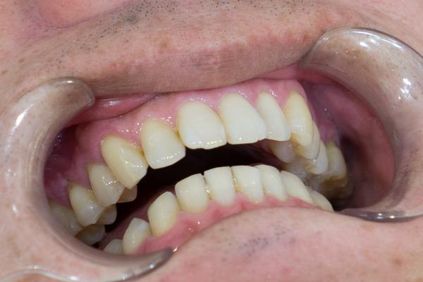 きれいな歯さくら カジュアルホワイトニング-3