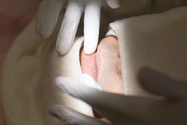 TRUSAKIきれいな歯クリニックさくら-11