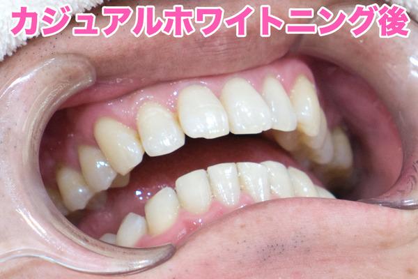 きれいな歯さくら-カジュアルホワイトニングafter