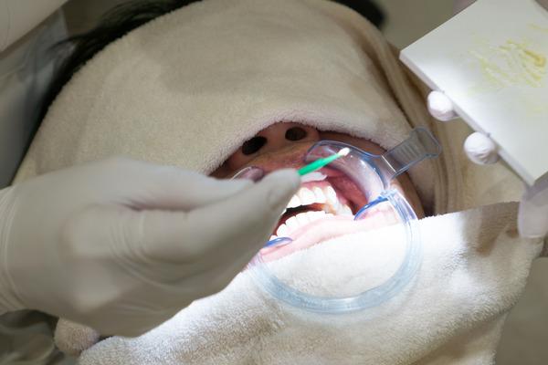 きれいな歯さくら カジュアルホワイトニング-7
