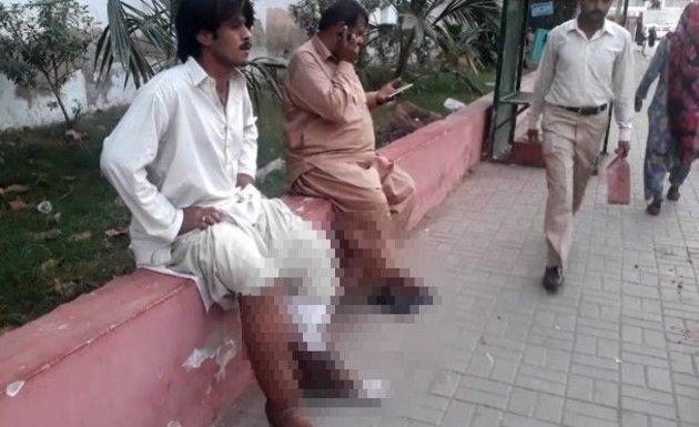 パキスタンの両足壊死ニキ