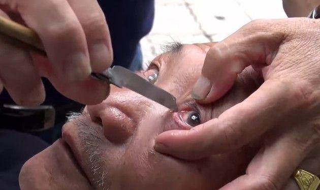 カミソリで目を掃除する中国の美容師