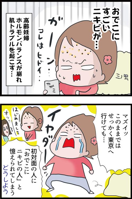 【妊娠3カ月】高齢妊婦が肌トラブル対策に使ったものは…(妻の高齢妊娠編⑪)1