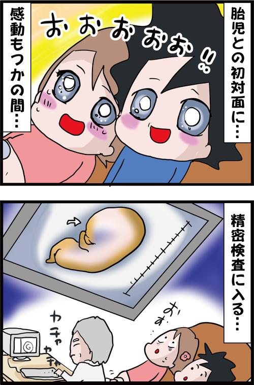 【妊娠4カ月】胎児と感動の対面の後、伝えられた出生前診断の結果…(妻の高齢妊娠編㉔)1