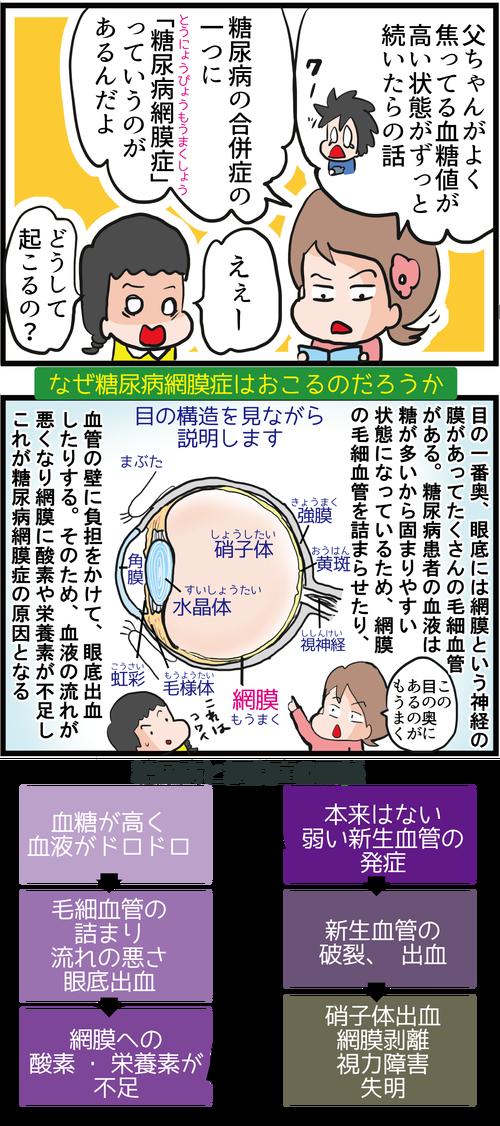 【血糖コントロール】失明の危険も!糖尿病網膜症ってどんなの?!3