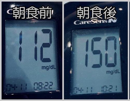 昨日の朝食前後血糖値