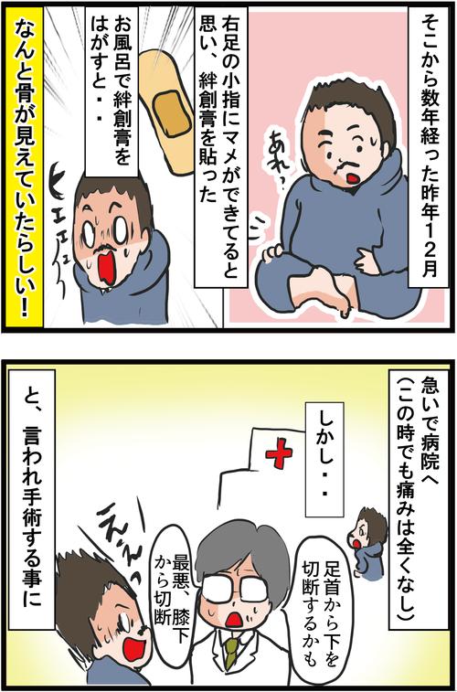 【血糖値500超え】新宿2丁目人気ママ兼タレントが2型糖尿病で小指切断に…2