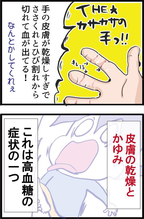 【高血糖】手足の乾燥に要注意!糖尿病の初期症状かも…?2