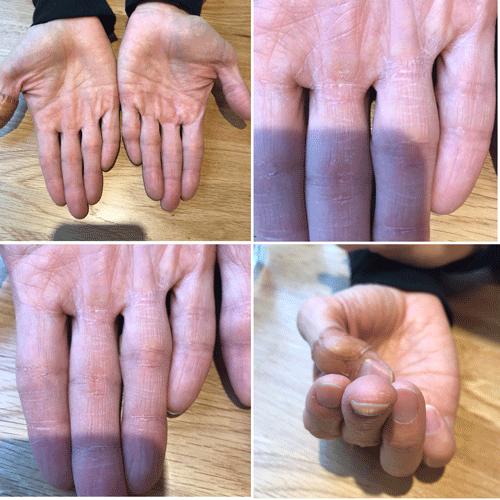 夫の手の乾燥