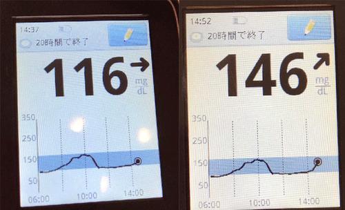 血糖値の推移1