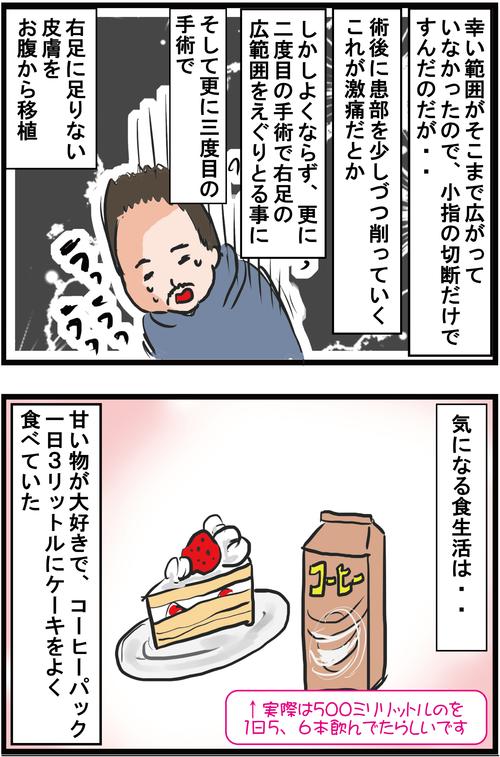 【血糖値500超え】新宿2丁目人気ママ兼タレントが2型糖尿病で小指切断に…3
