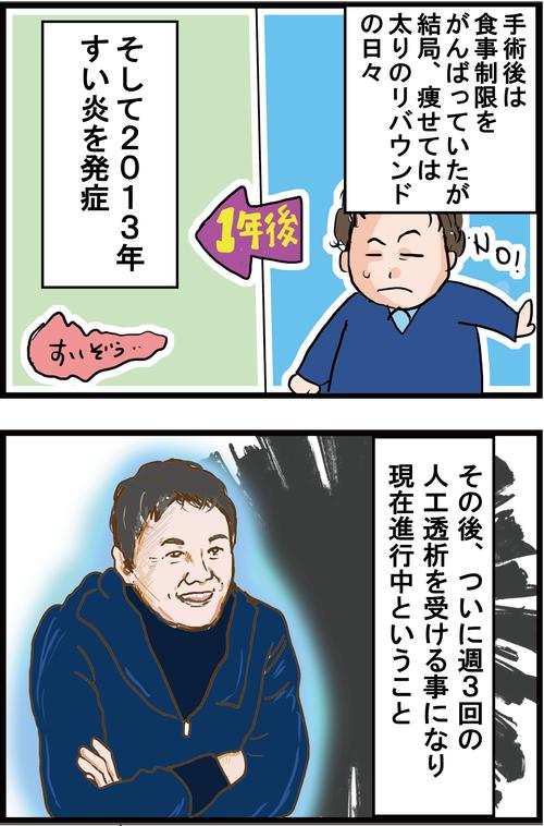 【糖尿病が悪化】人工透析となってしまった渡辺徹さん…3