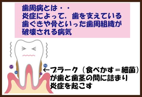 糖尿病と歯周病4